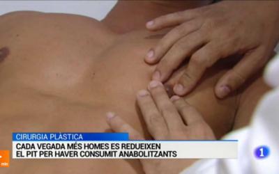 Notícia sobre l'increment dels casos de ginecomàstia per consum d'anabolitzants, a l'Informatiu de TVE